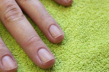 Слоятся и ломаются ногти? Действенные методы борьбы с расслаиванием ногтей