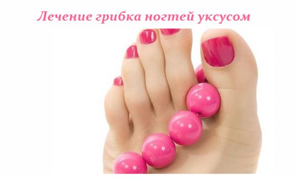 Как лечить ногти уксусом
