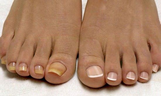 Лечение грибка ногтей уксусом с содой