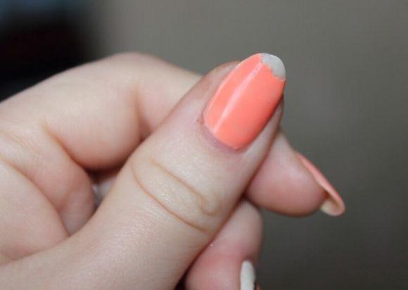 Почему отслаивается гель лак от ногтей