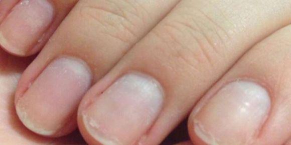 Почему слоятся ногти на руках. Причины