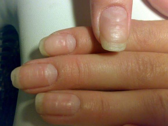 Почему ногти на руках волнистые