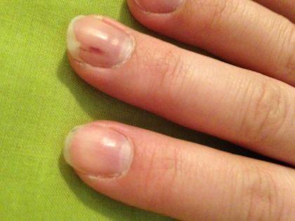 Почему болят ногти на руках