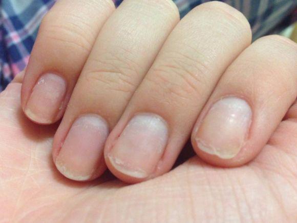 Почему не растут ногти на руках