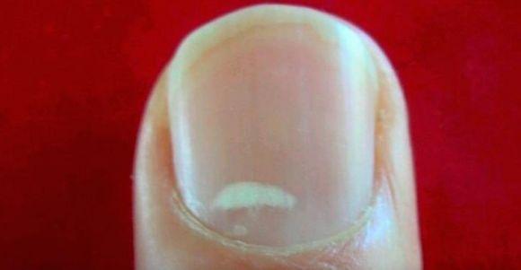 Почему белые пятна на ногтях рук