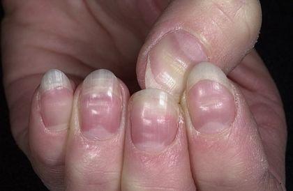 Почему деформируются ногти на руках