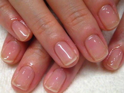 Восстановление ногтей после наращивания